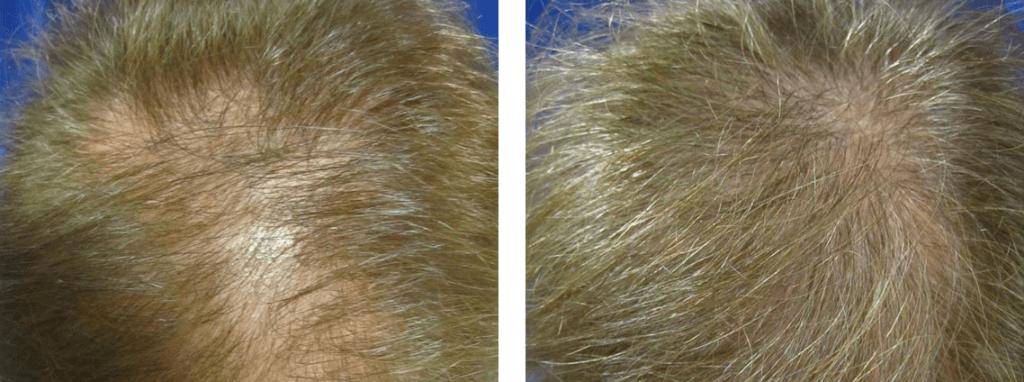 hair restoration, Hair Restoration