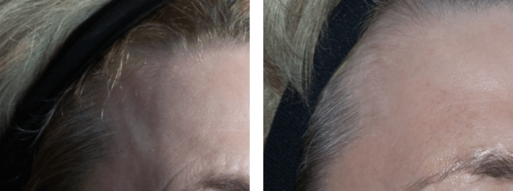 , Botox, Dysport, and Xeomin