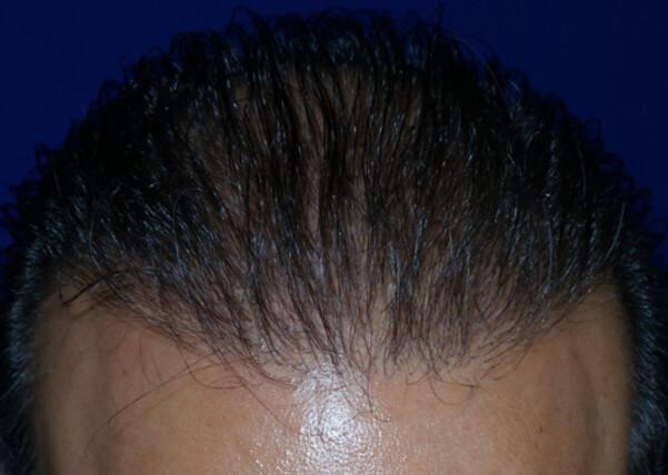 , Hairblast