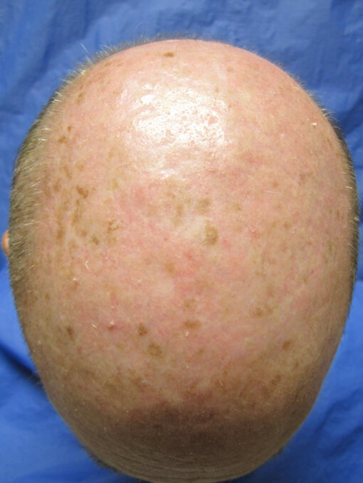 , Hyperpigmentation – Case 5