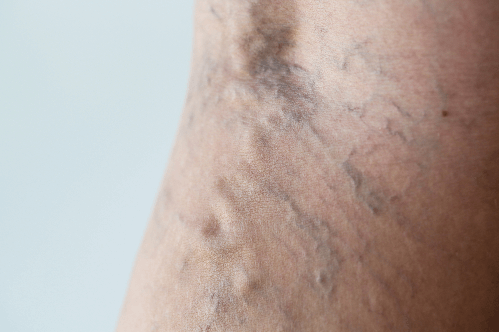 sclerotherapy, Sclerotherapy FAQs: How Quick Is the Recovery Period?