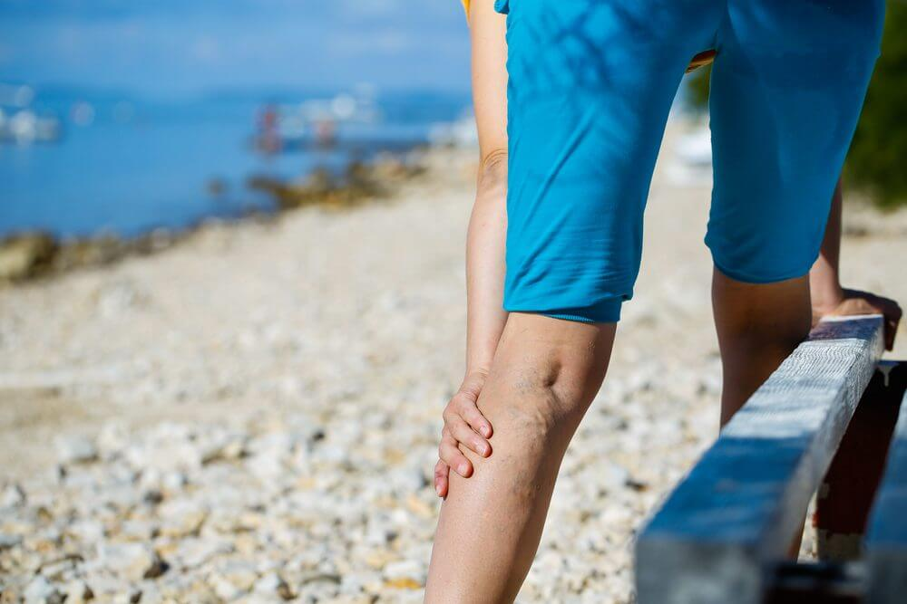 Varicose Veins? Why You Should Consider Sclerotherapy
